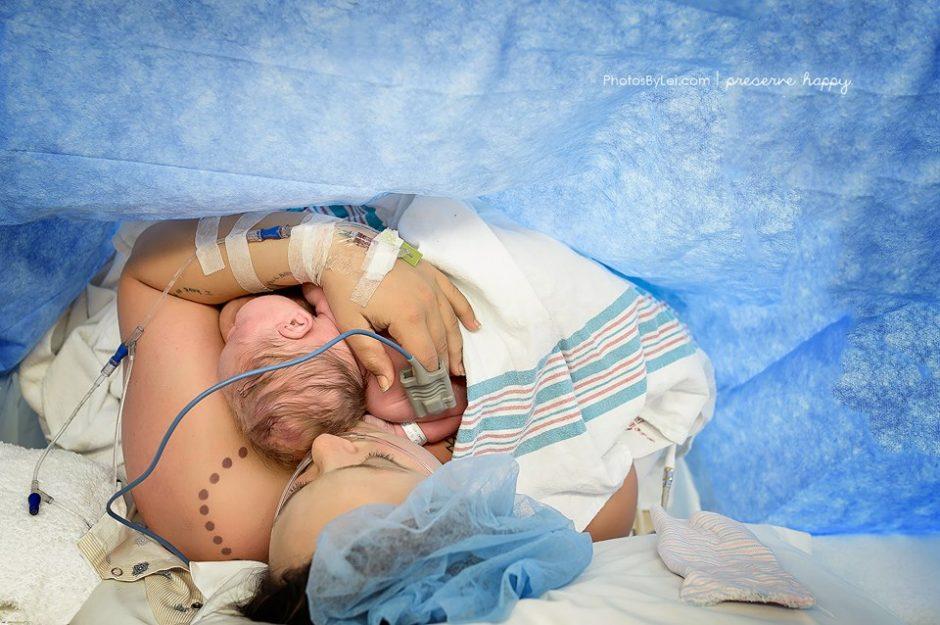 anne ve bebek dostu sezaryen